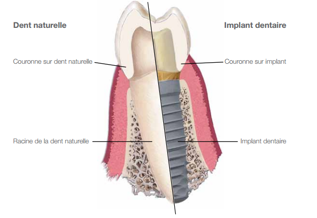 Description implant